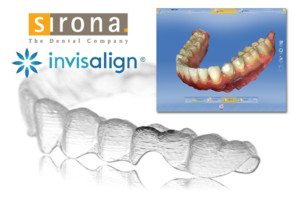 digital invisalign impressions