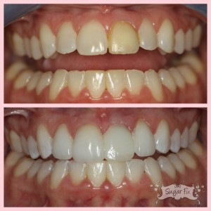 before and after of discolored crown