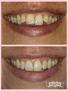 Before and after of Invisalign
