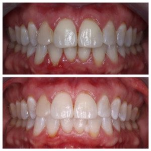 Zoom Whitening Before & After // Sugar Fix Dental//january