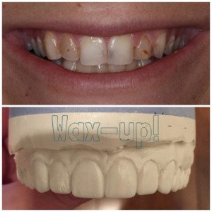 dental wax up