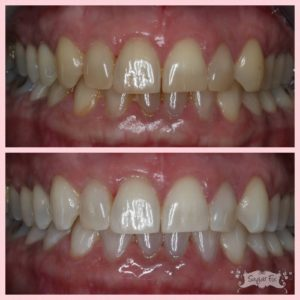 zoom whitening results