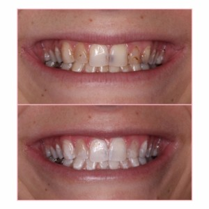 sugar fix dental loft//porcelain restorations