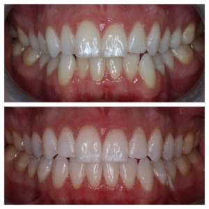 sugarfixdentalloft//porcelain restorations