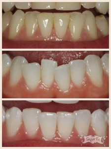 Lower teeth crowding fixed with Invisalign 10 Express