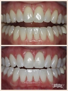 zoom whitening before and after