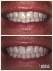 whitening before the holidays