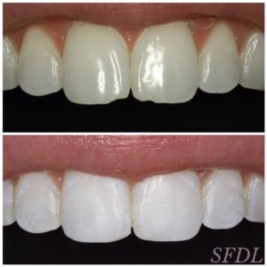 Before and after of anterior bonding to correct chipped teeth