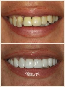 Porcelain Veneers // Before & After // Dr. Jessica Emery // Sugar Fix Dental Loft // Lakeview Dentist