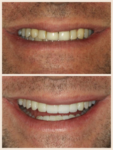 Porcelain Veneers // Before & After 2 // Dr. Jessica Emery // Sugar Fix Dental Loft // Lakeview Dentist